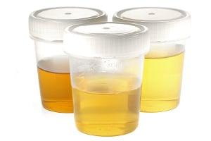 Abstinenznachweis bei Alkohol: Der Urin kann getestet werden.