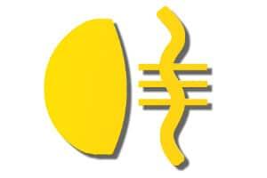 Das Symbol der Nebelschlussleuchte: Die Kontrollleuchte hat die Farbe gelb!